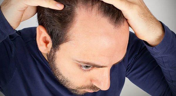 Dökülen Saçların Tekrar Çıkması İçin Ne Yapmalıyım?
