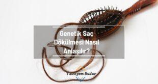 Genetik Saç Dökülmesi Nasıl Anlaşılır